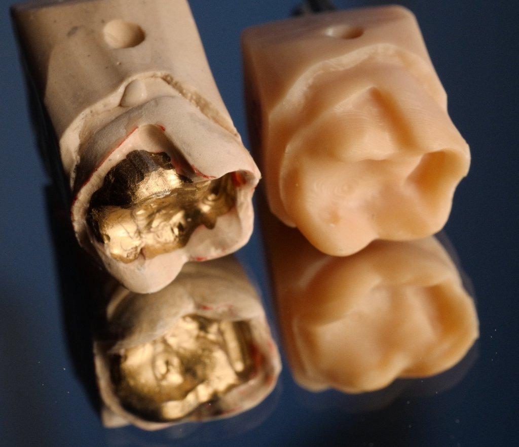 Die feinen Details der Präparation wirken auf dem gedruckten Stumpf wie verwaschen